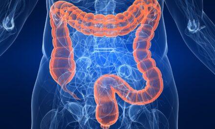 Tratamentul cu molecule mici reduce apariția metastazei în cazul cancerului de colon