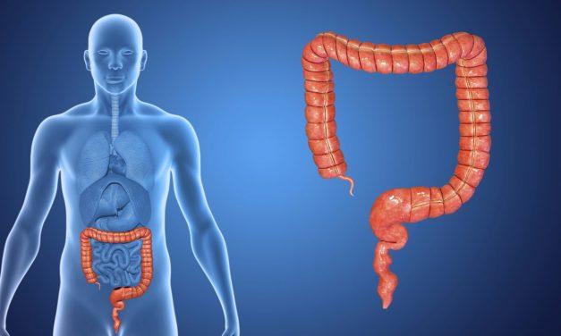 Cum apare cancerul colorectal?