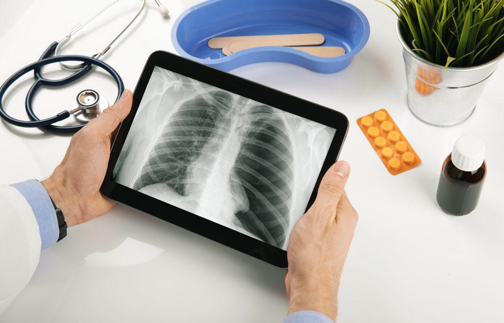 Tratarea cancerului pulmonar cu celule mici