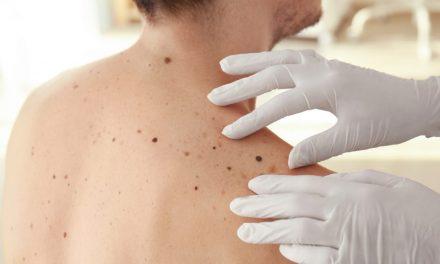 Depistarea precoce a melanomului