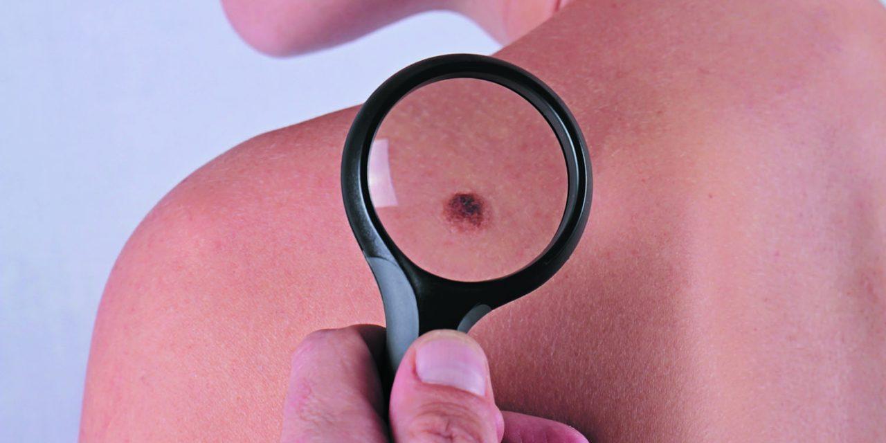 Simptomele melanomului