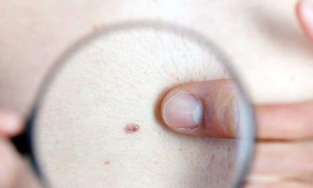 Cum se tratează melanomul