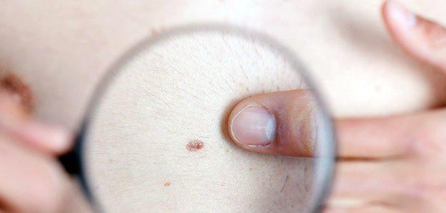 Vaccinul terapeutic de tip ARNm pentru melanomul avansat, produs de BioNTech, administrat primului pacient într-un studiu de fază II