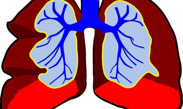 Ce este cancerul pulmonar?