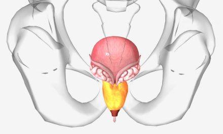 Ce este cancerul de prostată?