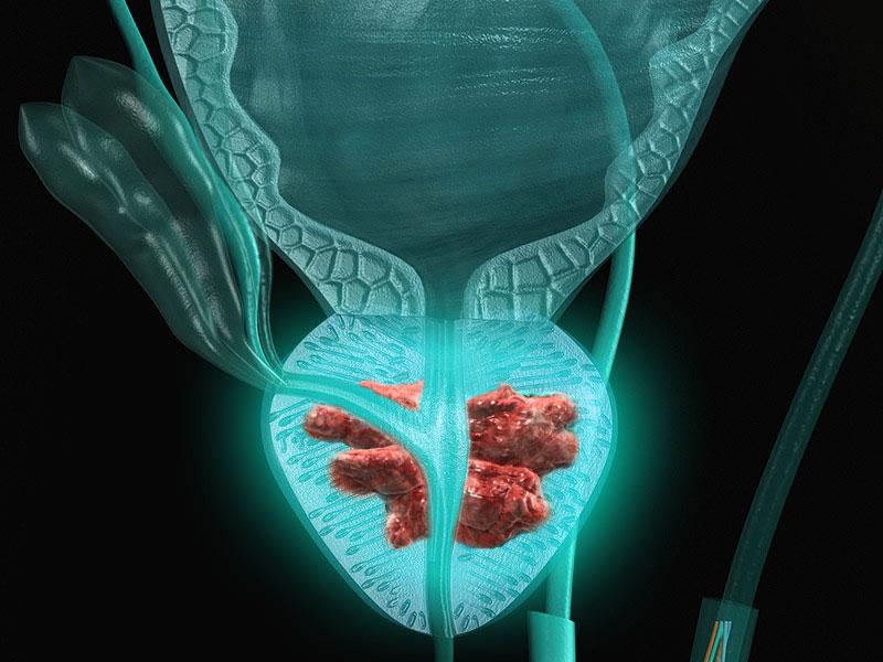 Factori de risc în cancerul de prostată