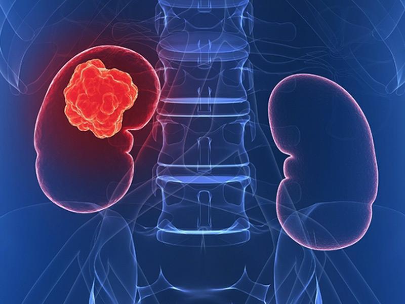 Semne și simptome ale cancerului renal