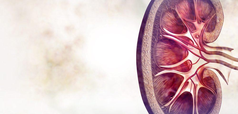 Stadiile cancerului renal