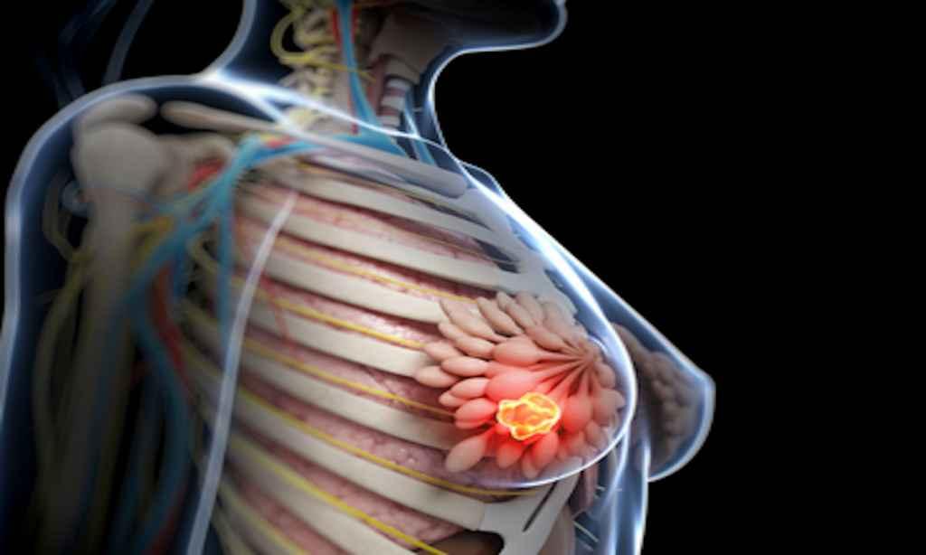 Nouă abordare promițătoare în tratarea unei forme agresive de cancer de sân