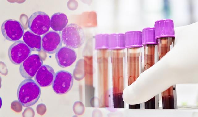 Diagnosticarea leucemiei limfocitare cronice