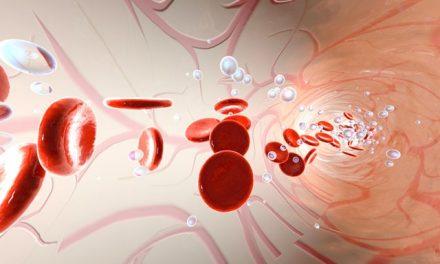 Protocolul de tratament la pacienții cu limfomnon-Hodgkin (LNH)indolent în timpul COVID-19