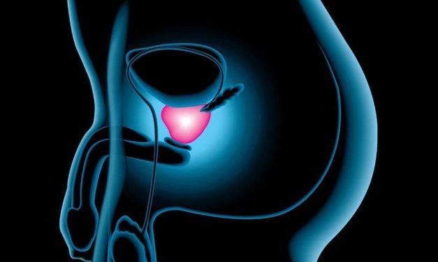 Prevenirea cancerului de prostată