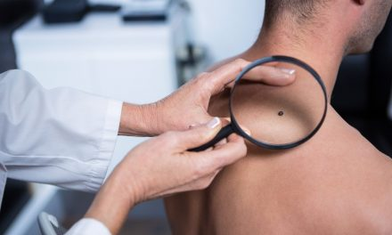 Studiu: Melanomul se declanșează în celulele foliculilor de păr