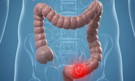 Anumite infecții din sânge – risc crescut de cancer de colon