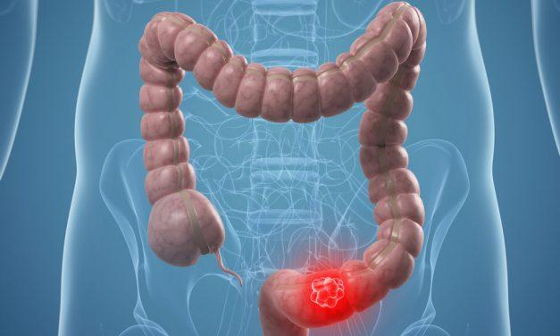 Cancer de colon: cum cresc și se înmulțesc celulele, vizualizate printr-o tehnologie nouă