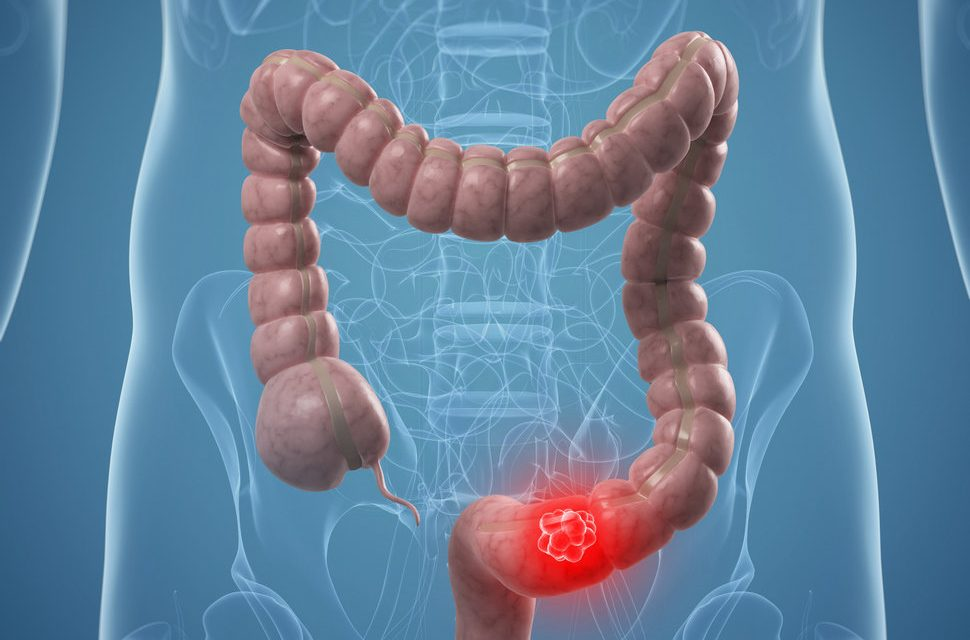 Studiu: Inhibitorii ACE și ARB reduc riscul de cancer colorectal