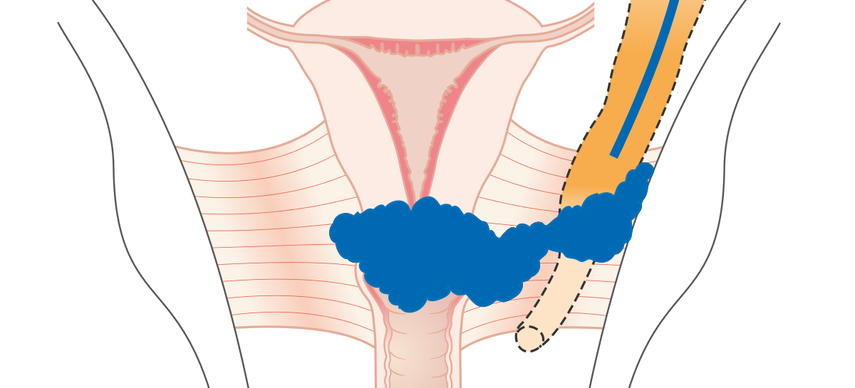 Studiu: România are cea mai ridicată rată a mortalității din cauza cancerului de col uterin din Europa, depășind state mai sărace precum Republica Moldova sau Ucraina
