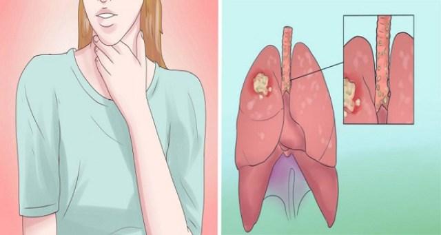 Semnele timpurii ale cancerului de plămâni