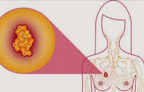 Sistem bazat pe inteligenţa artificială, mai eficient decât radiologii în depistarea cancerului de sân