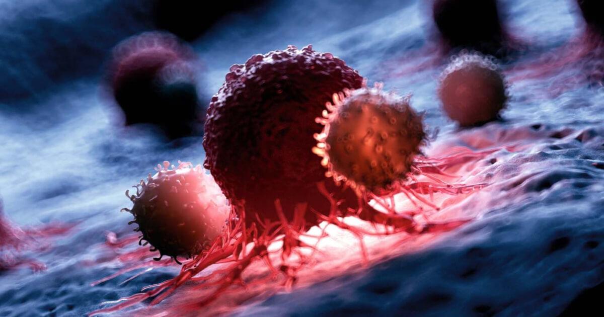 Datele din practica medicală confirmă eficacitatea și siguranța terapiei celulare Kymriah, pentru pacienții cu limfom difuz cu celulă mare B și leucemie acută limfoblastică