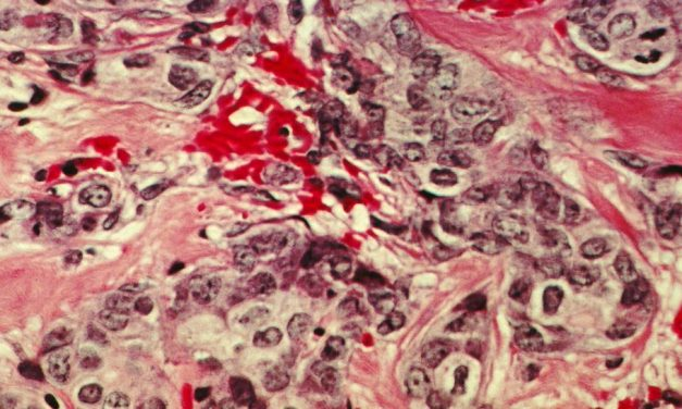 Nouă opțiune terapeutică pentru tratarea timpurie a cancerului de sân