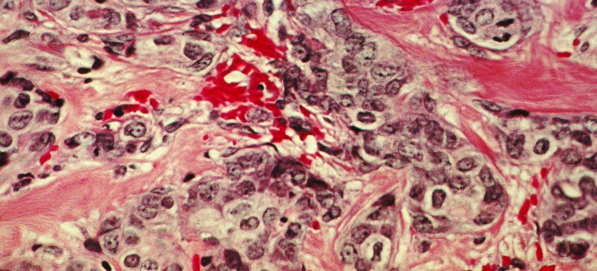 60% din persoanele cu cancer de sân, probabilitate mai mare să moară de cancer după ce au supraviețuit unui atac de cord