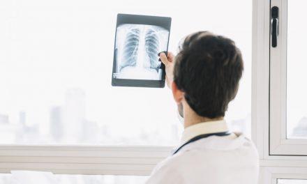 STUDIU. Screeningul cancerului pulmonar prin low-dose CT poate reduce ratele de mortalitate cu până la 33%