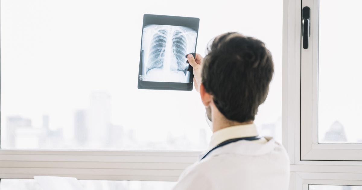 Inteligența artificială prezice dacă nodulii pulmonari vor deveni canceroși