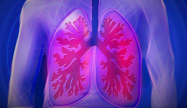 Algoritmii pot fi folosiţi pentru a detecta ADN-ul cancerului pulmonar în mostrele de sânge