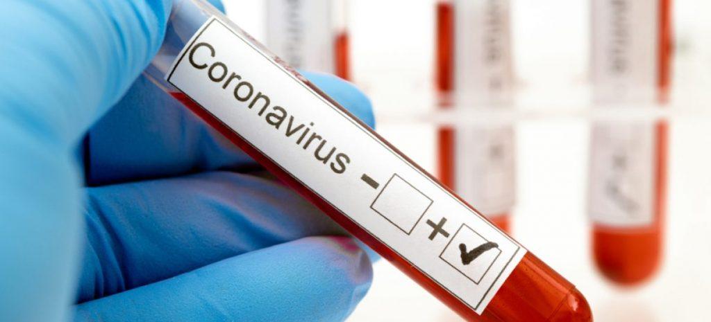 Pacienții oncologici care fac chimioterapie, cei care fac hemodializă și personalul din căminele de bătrâni vor fi testați pentru coronavirus