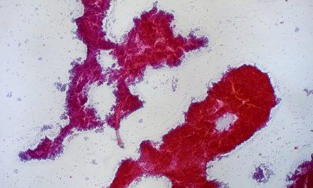 O nouă terapie reduce riscul de deces cu 42% în randul pacienților cu cancer la ficat