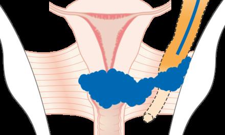 Recomandări pentru utilizarea radioterapiei și brahiterapiei în cancerul de col uterin