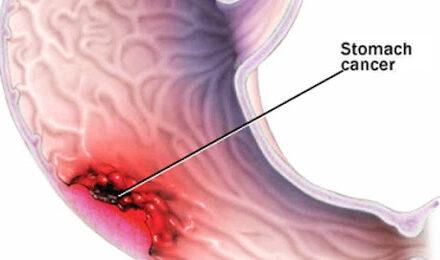 Grupele de sânge cu risc crescut de a dezvolta cancer gastric