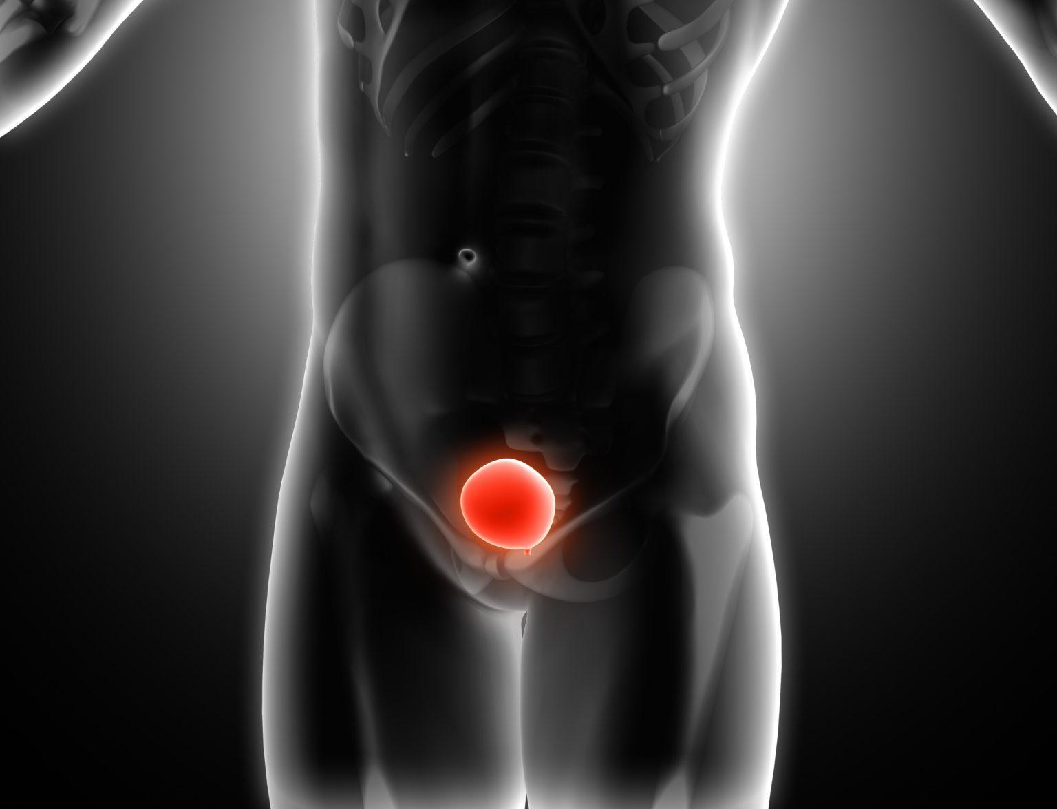 Terapia genică în cancerul vezical