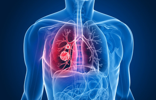 Cancerul pulmonar: prioritate pentru sistemul de sănătate. Strategii pentru depistarea bolii în stadii curabile și rolul diagnosticului de precizie