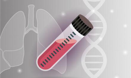 FDA aprobă primul test de biopsie lichidă care utilizează tehnologia NGS pentru diagnosticul cancerului pulmonar cu mutații EGFR