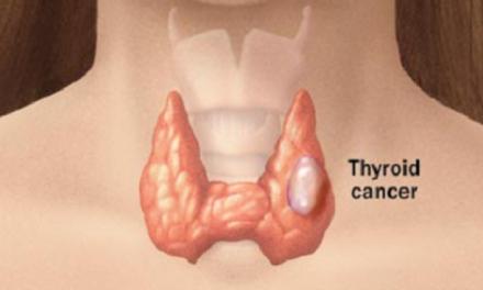 Creșterea supravieţuirii în cancerul tiroidian anaplastic