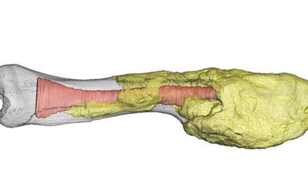 A fost identificat primul caz de cancer avansat – la un dinozaur