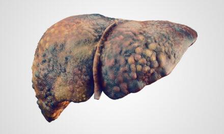 Cum influențează apartenența geografică și veniturile familiei rata de diagnosticare a cancerului hepatic