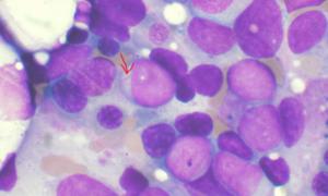 Nilotinib, medicamentul pentru leucemie aprobat de FDA, poate ajuta la tratarea melanomului metastatic