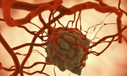 Studiu: Cabozantinibul poate reduce volumul tumorii în neurofibromatoză
