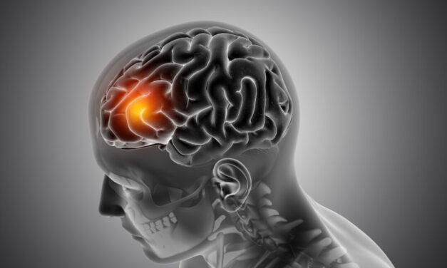 Unul din cinci cancere cerebrale sunt alimentate de mitocondrii hiperactive