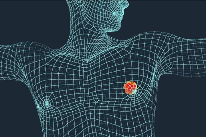 Bărbații cu cancer mamar se confruntă cu o prevalență ridicată a factorilor de risc pentru bolile de inimă