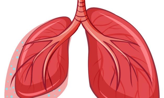 Diagnosticarea cazurilor noi de cancer pulmonar a scăzut cu 38% în timpul pandemiei COVID-19