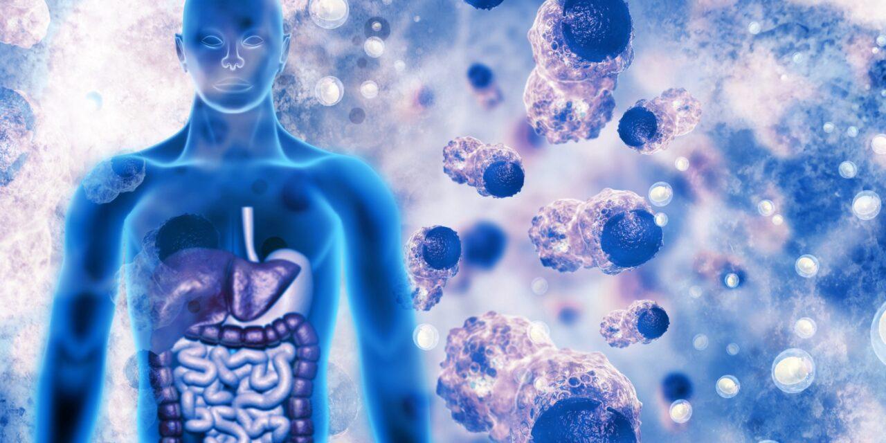 Oncolog: Adesea, imunoterapia trebuie combinată cu alte tratamente, inclusiv chimioterapie