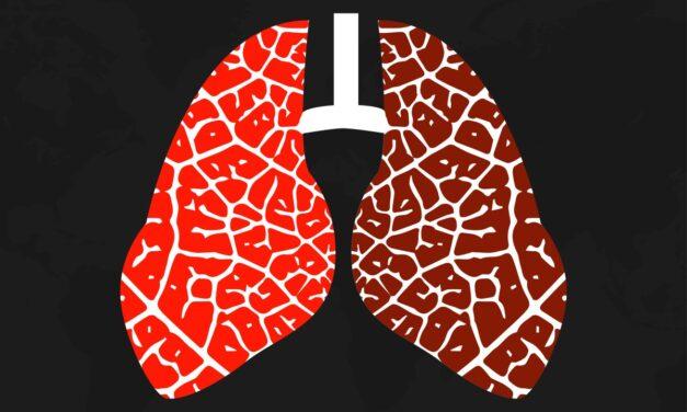 Inteligența artificială poate ajuta la prevenirea efectelor adverse ale imunoterapiei la unii pacienți cu cancer pulmonar