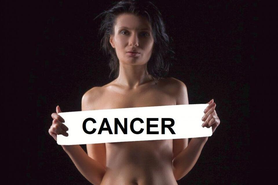 Cancerul de sân, cel mai răspândit tip de cancer depășindu-l pe cel pulmonar (oms)