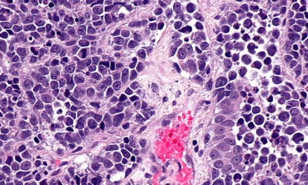 Cancer la vezică: Medicament care poate reduce cu o treime riscul de deces