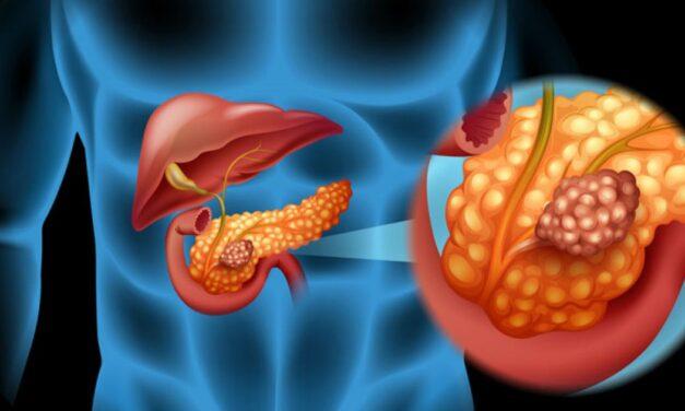 În faze incipiente, cancerul de pancreas poate fi vindecat