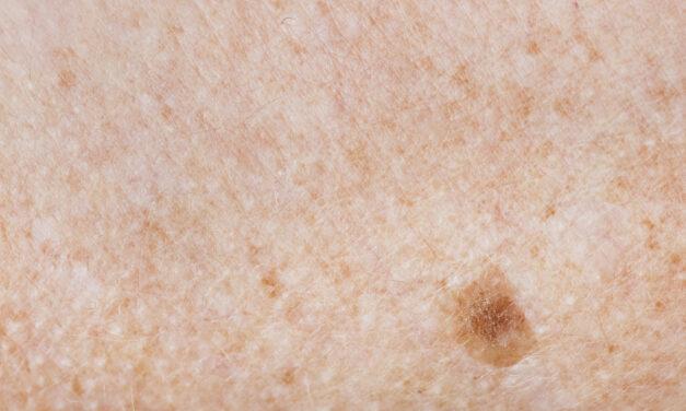 Celule canceroase, distruse cu nanoparticule. E nevoie doar de o injecție